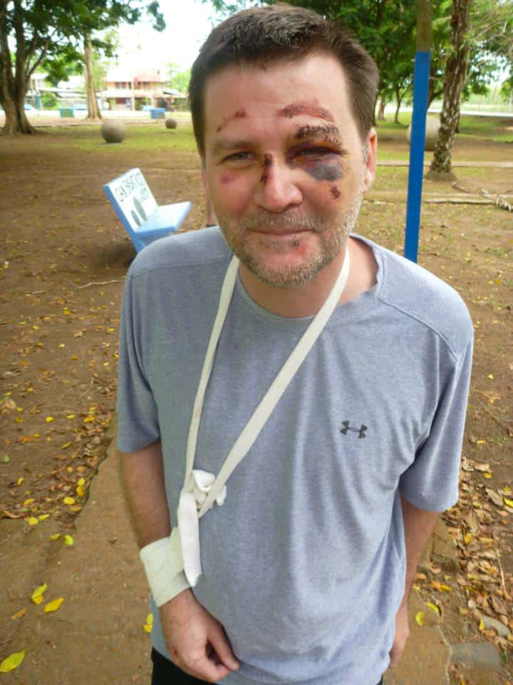 michael hodson post accident costa rica