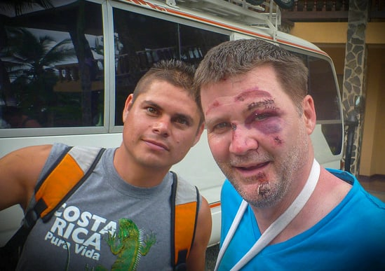 michael hodson injured in bike accident in costa rica